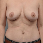 Breast Fat Transfer, Dr. Cassileth, Case 22 After