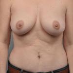 Breast Fat Transfer, Dr. Cassileth, Case 22 After