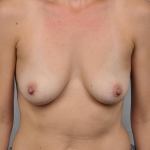 Breast Augmentation, Dr. Cassileth, Case 13 Before