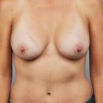 Breast Augmentation, Dr. Cassileth, Case 13 After