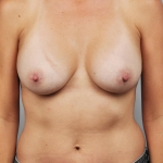 Breast Augmentation, Dr. Cassileth, Case 13 After