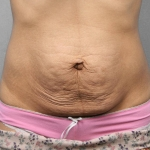 Tummy Tuck, Dr. Cassileth, Case 10 Before