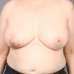 One-Stage Breast Reconstruction, Dr. Cassileth, Case 18 Before