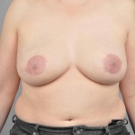 One-Stage Breast Reconstruction, Dr. Cassileth, Case 18 After