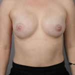 One-Stage Breast Reconstruction, Dr. Cassileth, Case 2 After