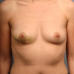 One-Stage Breast Reconstruction, Dr. Cassileth, Case 3 Before