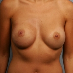 One-Stage Breast Reconstruction, Dr. Cassileth, Case 3 After