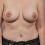 One-Stage Breast Reconstruction, Dr. Cassileth, Case 22 After