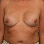 One-Stage Breast Reconstruction, Dr Cassileth, Case 8 Before