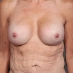 One-Stage Breast Reconstruction, Dr Cassileth, Case 8 After