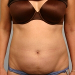 Liposuction, Dr. Cassileth, Case 1 Before