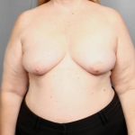 Breast Reconstruction with Fat Transfer, Dr. Killeen, Case 68 Before
