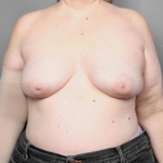 Breast Reconstruction with Fat Transfer, Dr. Killeen, Case 68 After