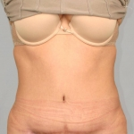 Liposuction, Dr. Cassileth, Case 1 After